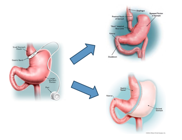 Converting A Gastric Band To A Laparoscopic Gastric Bypass Or Sleeve